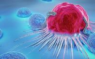 Kanser mücadelesinde başarıyı etkileyen 6 önemli gelişme