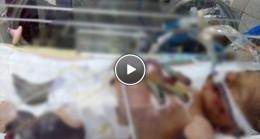 Erken Doğumun Ardından Kuvöze Alınan Bebeğin Vücudu Morarmaya Başladı